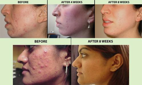 Red Light Therapy Acne Before and After