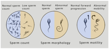 Count sperm vasectomy