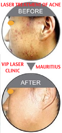 VIP LASER CLINIC MED SPA - MAURITIUS - What you should know