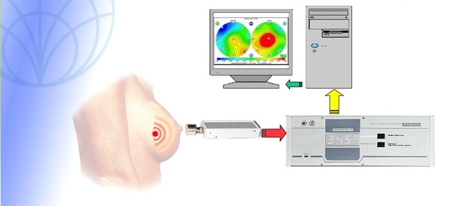 Microwave Radiothermometry Of Breasts: RTM Mammography