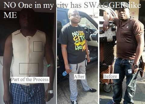Ivan Semwanga before, during and after the surgery
