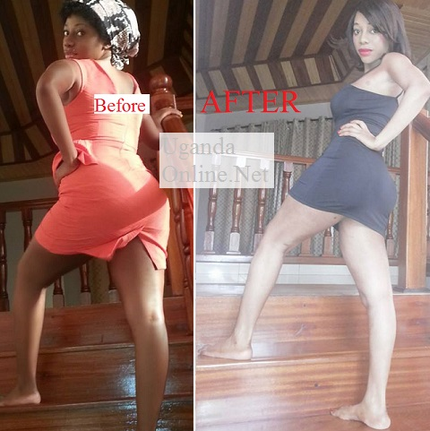 Bad Black before and after the skin bleaching