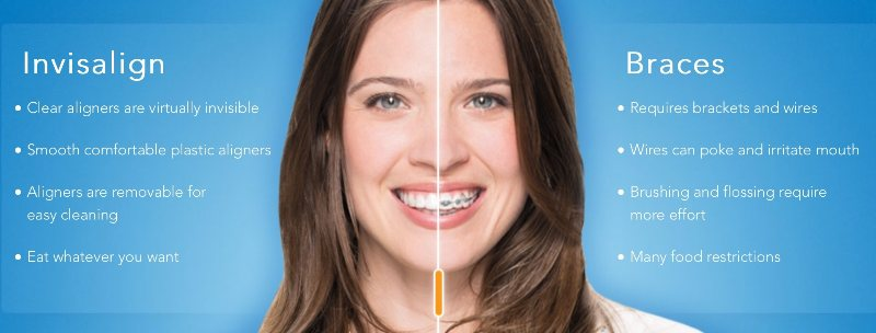 Why Invisalign may be a good choice for you