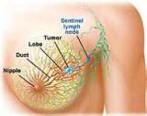 What Is Breast Cancer?